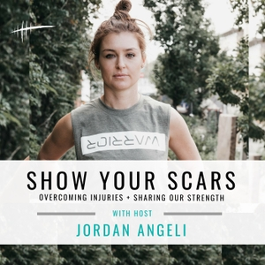 Show Your Scars by Jordan Angeli